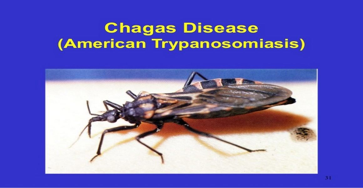 American Trypanosomiasis (Chagas Disease)