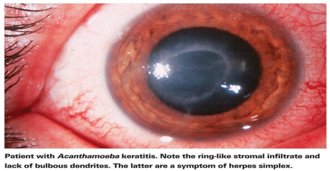 Acanthamoeba Infection